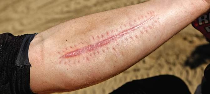 arm-pump-remedies